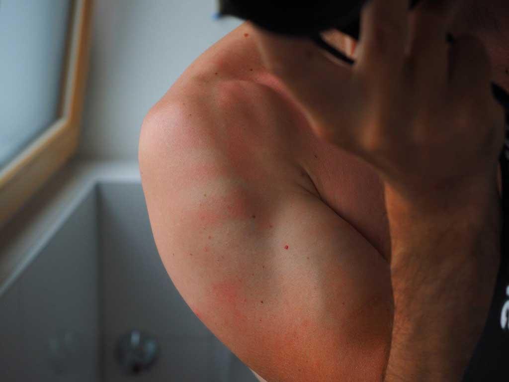 sunscreen importance avoids skin inflammation